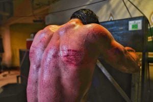 Drew McIntyre Reveals Brutal Photos From WWE Hell In A Cell, Issues Statement To Fans