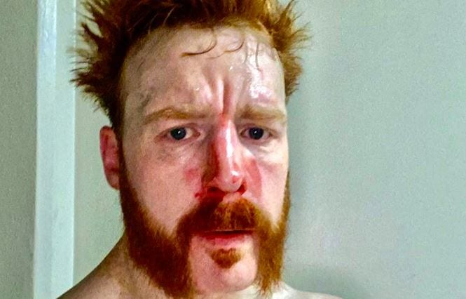 Sheamus Injury Update And Bloody Selfie From WWE RAW